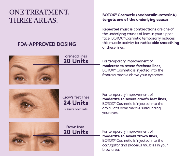 Botox Targeted Areas