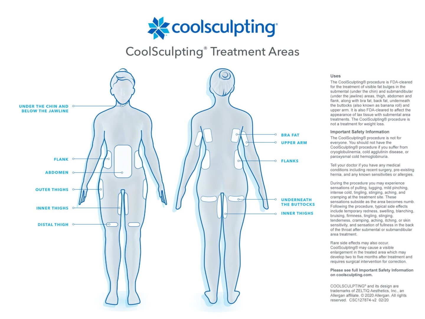 CoolScultping Treatment Areas